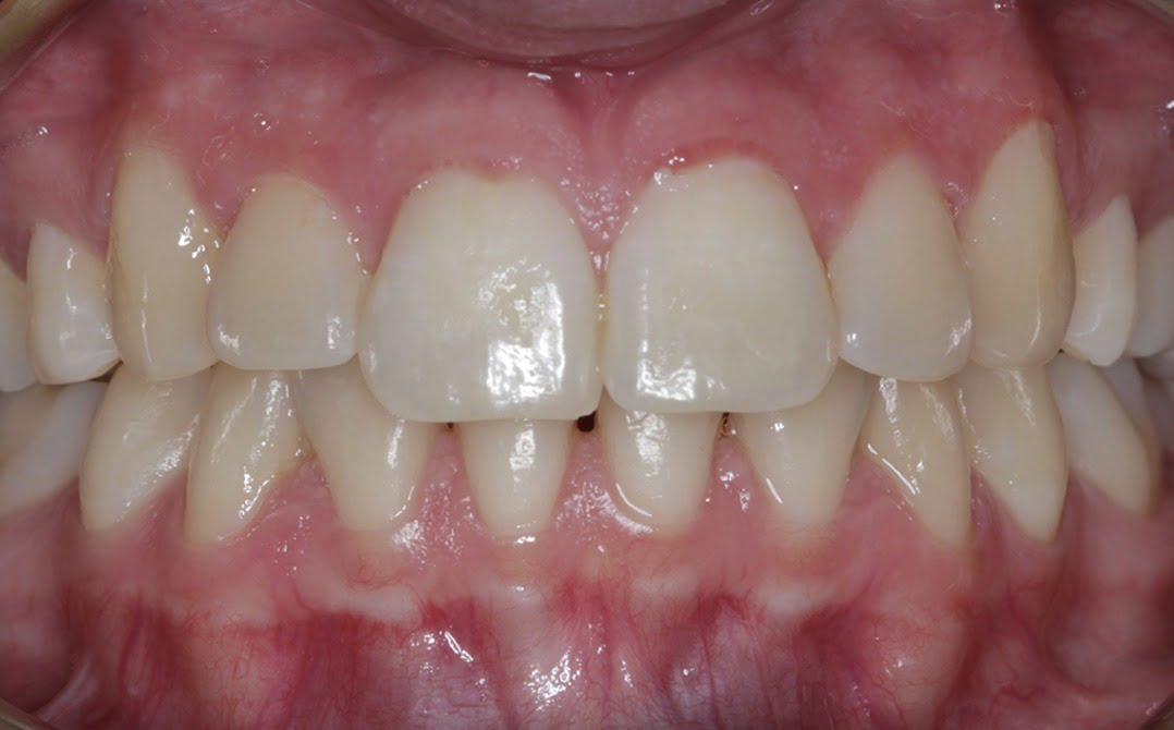 dental before and after